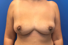 After Photo - Breast Revision - Case #22426 - Breast implant removal on a 38 year old female  - Frontal View