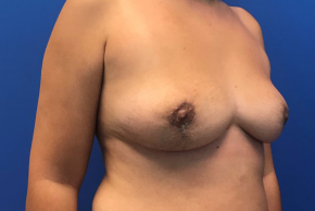 After Photo - Breast Revision - Case #22426 - Breast implant removal on a 38 year old female  - Oblique View