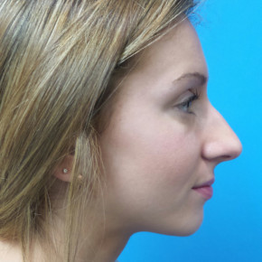 Before Photo - Nose Surgery - Case #22468 - 18 year old - Open Rhinoplasty w/submucous resection/Septoplasty & Spreader grafts to improve airway  - Lateral View
