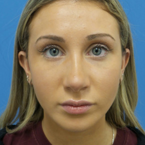 After Photo - Nose Surgery - Case #22468 - 18 year old - Open Rhinoplasty w/submucous resection/Septoplasty & Spreader grafts to improve airway  - Frontal View