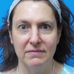 Before Photo - Brow Lift - Case #22492 - 58 year old  -  Browlift/Facelift/Lower Blepharoplasty/TCA Peel  -  10 months post-op - Frontal View