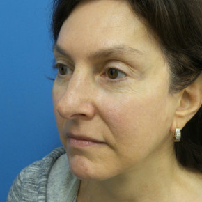 After Photo - Brow Lift - Case #22492 - 58 year old  -  Browlift/Facelift/Lower Blepharoplasty/TCA Peel  -  10 months post-op - Oblique View