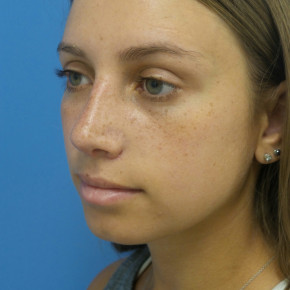 After Photo - Nose Surgery - Case #22588 - 22 year old  -  Rhinoplasty/Septoplasty/Turbinectomy  -  1 month post-op - Oblique View