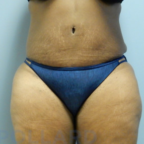 After Photo - Tummy Tuck - Case #22592 - Abdominoplasty - Frontal View