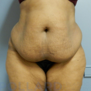 Before Photo - Tummy Tuck - Case #22593 - Abdominoplasty - Frontal View