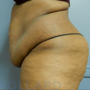 Before Photo - Tummy Tuck - Case #22593 - Abdominoplasty - Lateral View