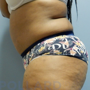 After Photo - Tummy Tuck - Case #22593 - Abdominoplasty - Lateral View