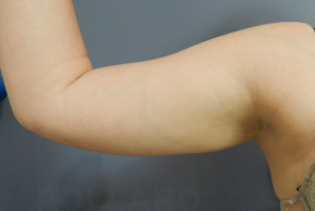 Before Photo - Liposuction - Case #22594 - Frontal View