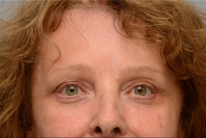 After Photo - Botulinum Toxin - Case #22606 - Frontal View