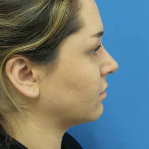 After Photo - Facial Rejuvenation - Case #22695 - 29 year old  -   LipoRF (radio frequency) & Direct Excision of Subplatysma Fat    3 months post-op - Lateral View
