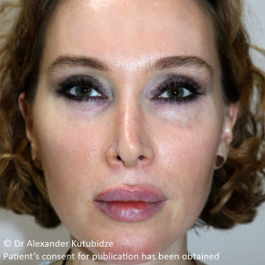 Before Photo - Nose Surgery - Case #22720 - Revision Rhinoplasty. 3 years after - Frontal View