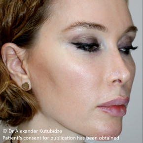 Before Photo - Nose Surgery - Case #22720 - Revision Rhinoplasty. 3 years after - Lateral View