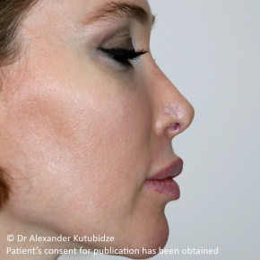Before Photo - Nose Surgery - Case #22720 - Revision Rhinoplasty. 3 years after - Posterior View