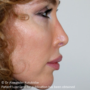 After Photo - Nose Surgery - Case #22720 - Revision Rhinoplasty. 3 years after - Posterior View