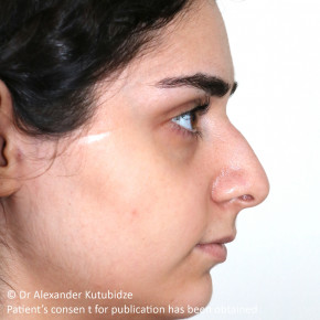 Before Photo - Nose Surgery - Case #22723 - One year after primary open rhinoseptoplasty and turbinate lateralization - Posterior View