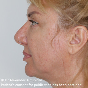 Before Photo - Facelift - Case #22727 - Deep Plane Face Lifting - Posterior Oblique View