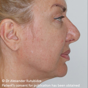 Before Photo - Facelift - Case #22727 - Deep Plane Face Lifting - Posterior View