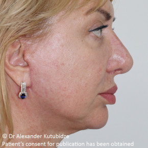 After Photo - Facelift - Case #22727 - Deep Plane Face Lifting - Posterior View
