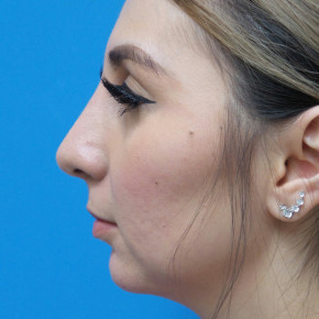After Photo - Nose Surgery - Case #22729 - 30 year old  -  Open Rhinoplasty & Chin Augmentation   3 months post-op - Lateral View