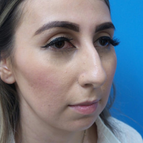 Before Photo - Nose Surgery - Case #22729 - 30 year old  -  Open Rhinoplasty & Chin Augmentation   3 months post-op - Oblique View