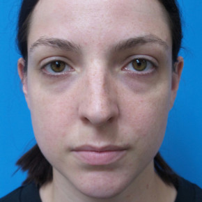 Before Photo - Nose Surgery - Case #22744 - 30 year old  -  Closed Rhinoplasty/Septoplasty/Turbinectomy  -  3 months post-op - Frontal View