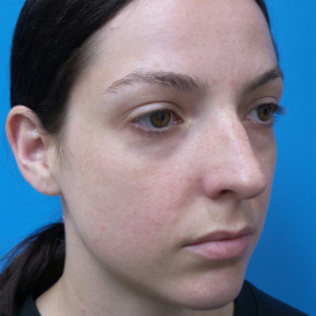 Before Photo - Nose Surgery - Case #22744 - 30 year old  -  Closed Rhinoplasty/Septoplasty/Turbinectomy  -  3 months post-op - Oblique View