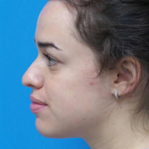 Before Photo - Nose Surgery - Case #22777 - 22 year old  -  Open Rhinoplasty  -  3 months post-op - Lateral View