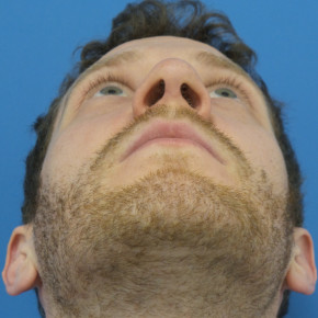 After Photo - Nose Surgery - Case #22829 - 31 year old  -  Open Rhinoplasty  -  3 months post-op - Worm's Eye View