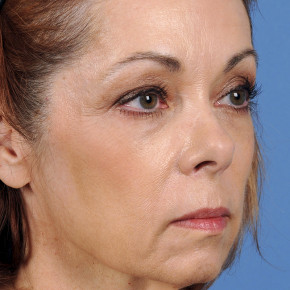 Before Photo - Facelift - Case #22852 - Facelift - 60-year-old woman - Oblique View