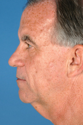 Before Photo - Neck Lift - Case #22853 - Neck Lift - 55-year-old man - Lateral View