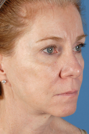 After Photo - Facelift - Case #22854 - Facelift - 57-year-old woman - Oblique View