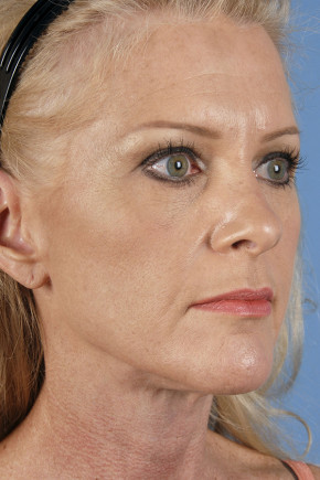 After Photo - Neck Lift - Case #22855 - Neck Lift - 55-year-old woman - Oblique View