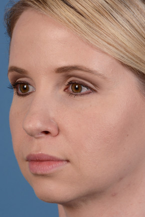 After Photo - Fillers - Case #22857 - Dermal Fillers - 33-year-old woman - Oblique View