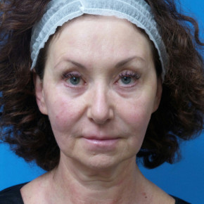 Before Photo - Facelift - Case #22889 - 55 year old  -  Facelift  -  2 months post-op - Frontal View