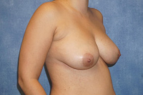 After Photo - Breast Revision - Case #22917 - Breast Implant Removal - Oblique View
