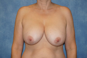 Before Photo - Breast Revision - Case #22932 - Breast Implant Removal - Frontal View