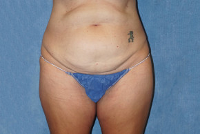 Before Photo - Tummy Tuck - Case #22949 - Frontal View