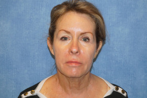 Before Photo - Facelift - Case #22964 - Frontal View