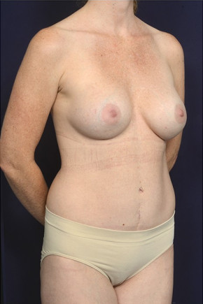 After Photo - Mommy Makeover - Case #23067 - Oblique View