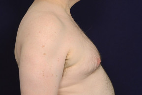 Before Photo - Gynecomastia - Case #23068 - Lateral View