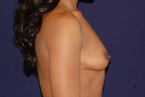 Before Photo - Breast Augmentation - Case #23235 - Lateral View