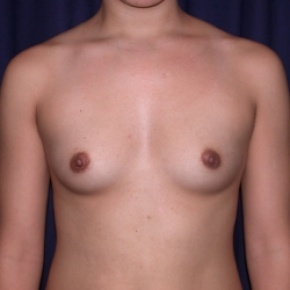 Before Photo - Breast Augmentation - Case #2521 - PeriAreolar Breast Augmentation - Frontal View
