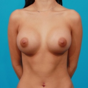 After Photo - Breast Augmentation - Case #2468 - Saline Breast Implants - Frontal View