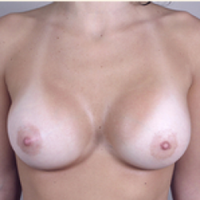 After Photo - Breast Augmentation - Case #2922 - Breast Augmentation New Jersey - Frontal View