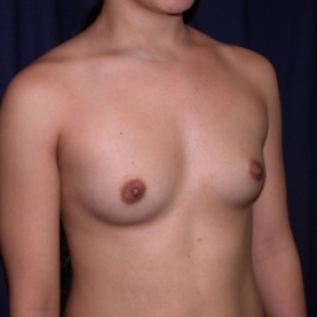 Before Photo - Breast Augmentation - Case #2521 - PeriAreolar Breast Augmentation - Oblique View