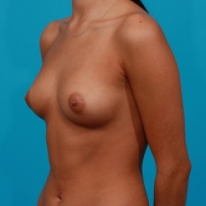 Before Photo - Breast Augmentation - Case #2468 - Saline Breast Implants - Oblique View