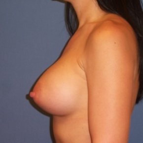 After Photo - Breast Augmentation - Case #2939 - Lateral View