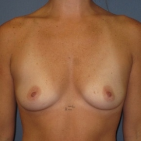 Before Photo - Breast Augmentation - Case #2940 - Frontal View