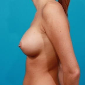 After Photo - Breast Augmentation - Case #2509 - Silicone Breast Augmentation - Lateral View