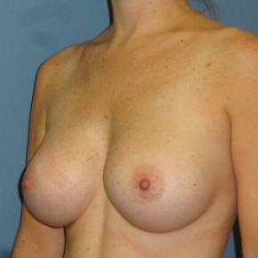 After Photo - Breast Augmentation - Case #2940 - Oblique View